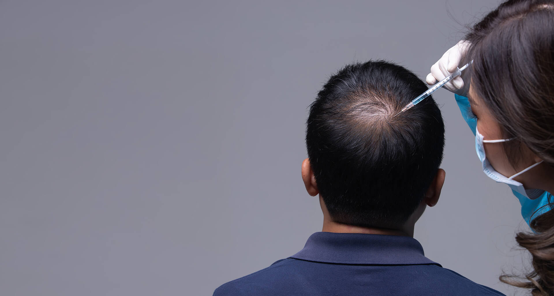 Cómo han evolucionado los trasplantes de pelo